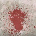Mordmerkmal: Heimtücke - und die feindselige Willensrichtung