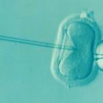 In-vitro-Fertilisation - und die Kosten der gleichzeitig durchgeführten Präimplantationsdiagnostik