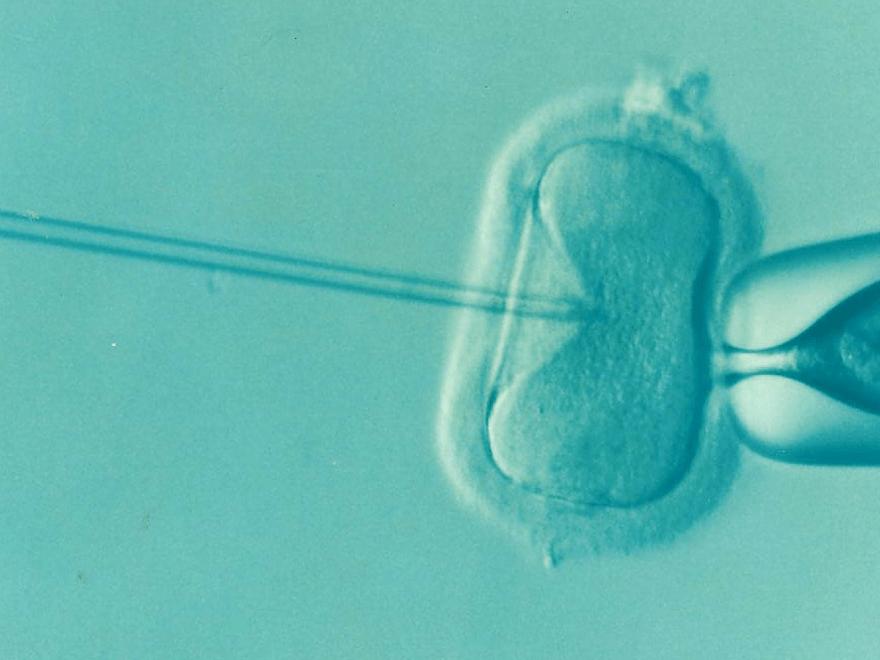 In-vitro-Fertilisation – und die Kosten der gleichzeitig durchgeführten Präimplantationsdiagnostik