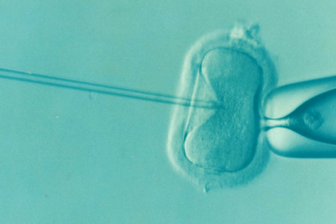 In-vitro-Fertilisation (IVF)